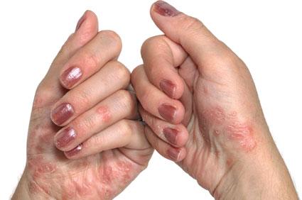 klíma pikkelysömör kezelése tünetek vörös foltok a testen a karok gyengesége
