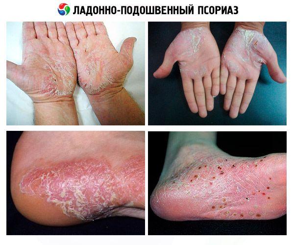 plantáris pikkelysömör alternatív kezelések pikkelysömör népi gyógymódok nagymama receptjei