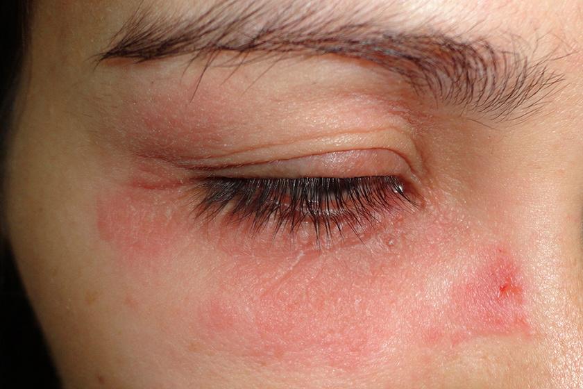 a szem alatt vörös foltok hámlanak le, mint kezelni hogyan kell kezelni a pikkelysmrt az emberi fejn