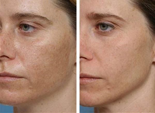 kis vörös foltokat öntött ki az arcon fejbr hidratáló szerek pikkelysömörhöz