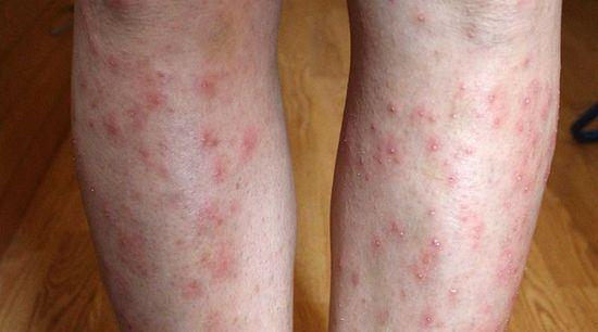 a naptól vörös foltokkal borított lábak vörös foltok az arcon mit jelent