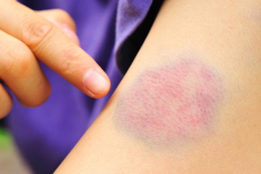 egy nagy vörös folt jelent meg a lábán fejbőr pikkelysömör kezelést okoz