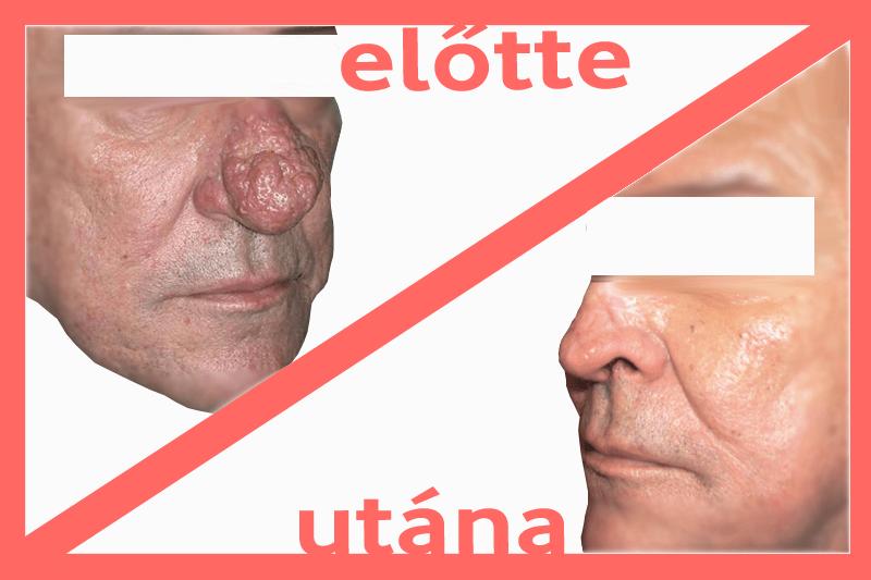hogyan lehet eltávolítani az orr piros foltjait pikkelysömör az arcon kezelés népi gyógymódokkal vélemények