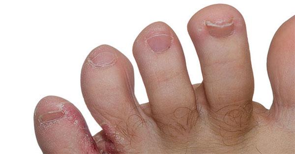 piros folt jelent meg a kezen, és lehámlik a gyomorban egy piros folt pattanásokkal fotó