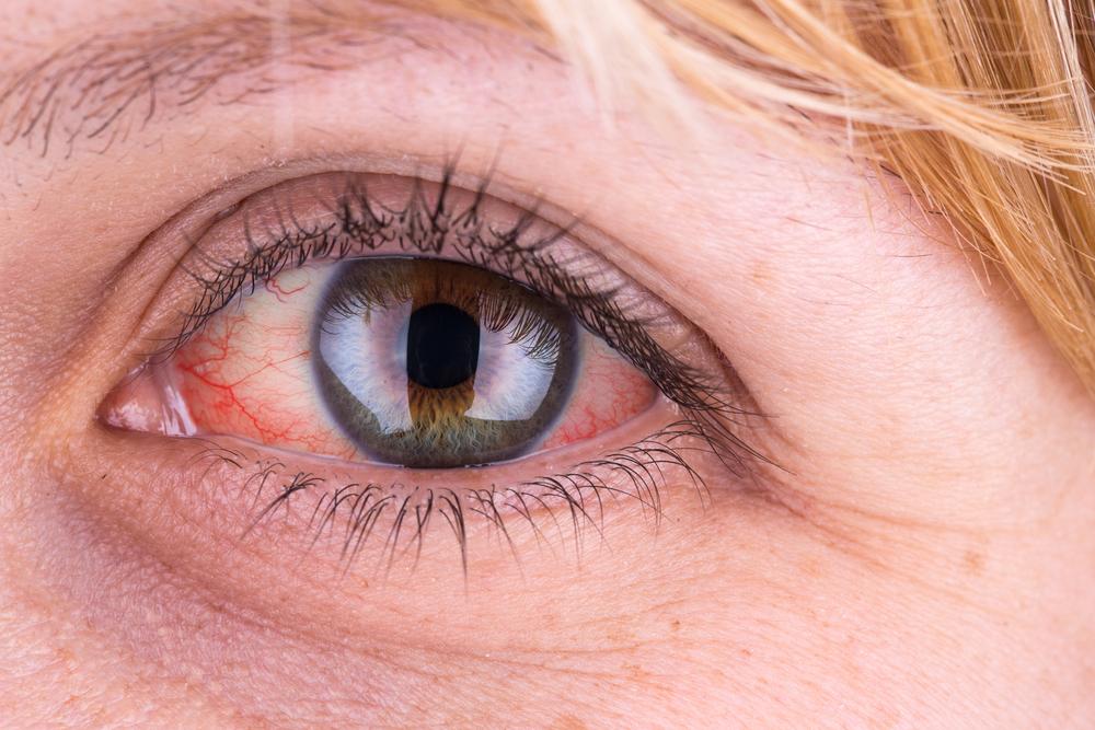 a szem vörös foltja viszket