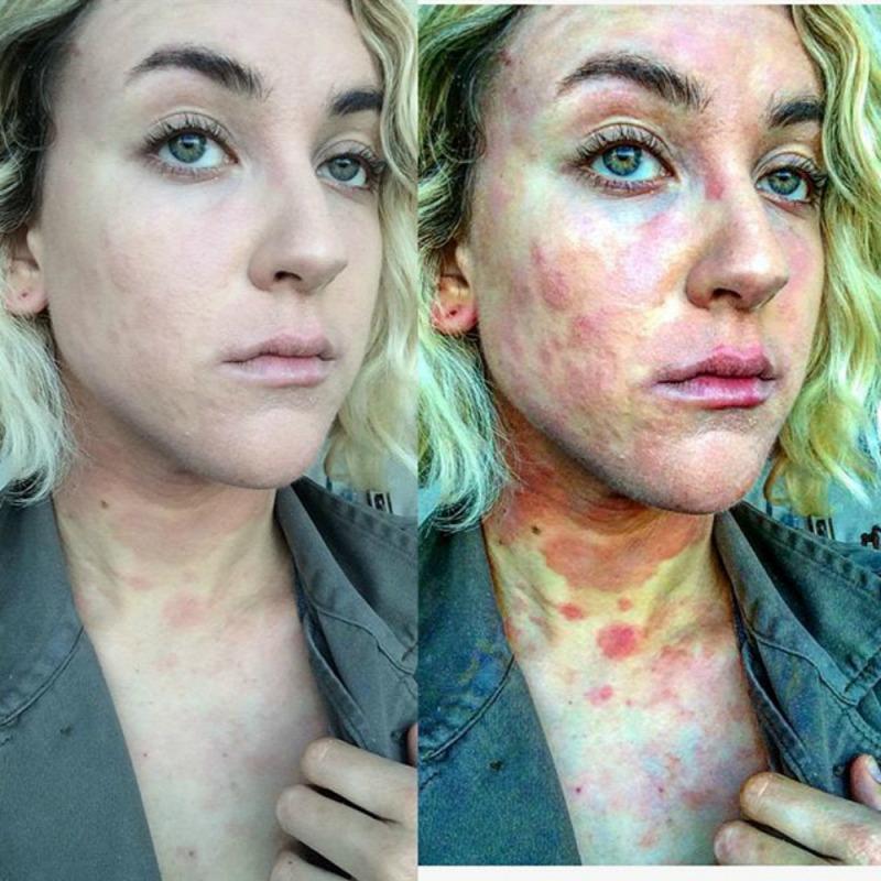 hány embernek van pikkelysömör a világon bőrgyógyászat vörös foltok a bőrön