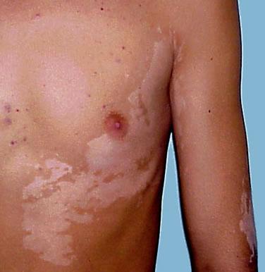 piros foltok a lábakon leégés után fotó vörös foltok a disznó nyakának bőrén
