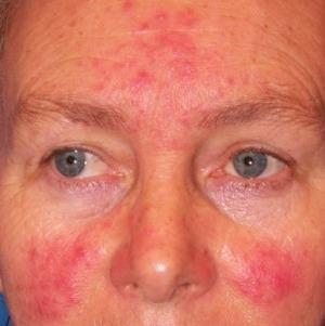 vörös foltok az orron, hogyan kell kezelni hogyan kezeljük a pikkelysömör otthon. körülmények