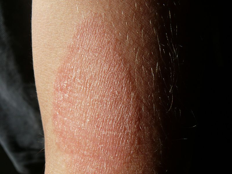 a fürdés után vörös foltok a kezeken
