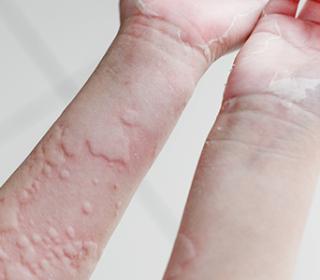 dermatology pikkelysömör kezelése sötétvörös foltok a talpon