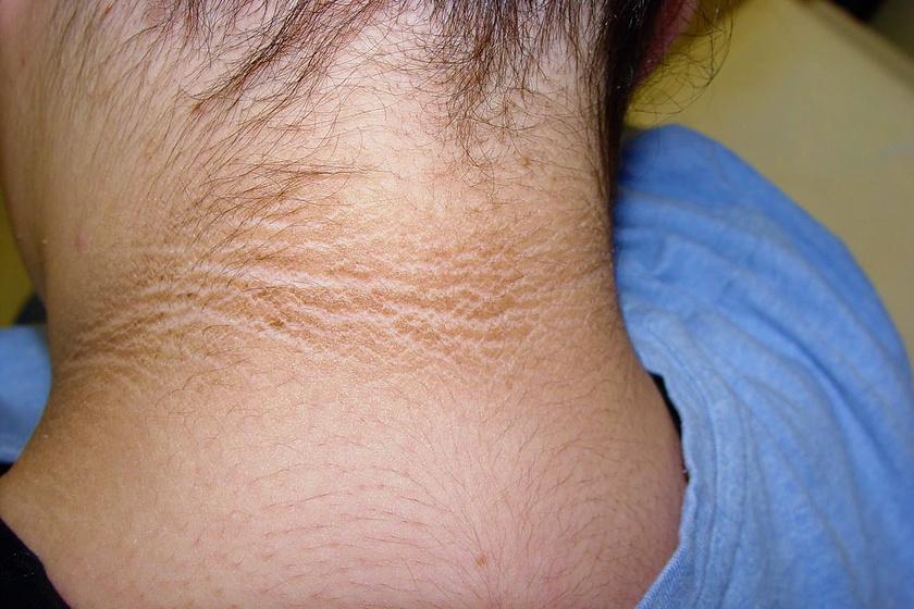 Bőrtünetek - A cukorbetegség első jelei lehetnek Vörös foltok a könyökön és a térden és viszketés