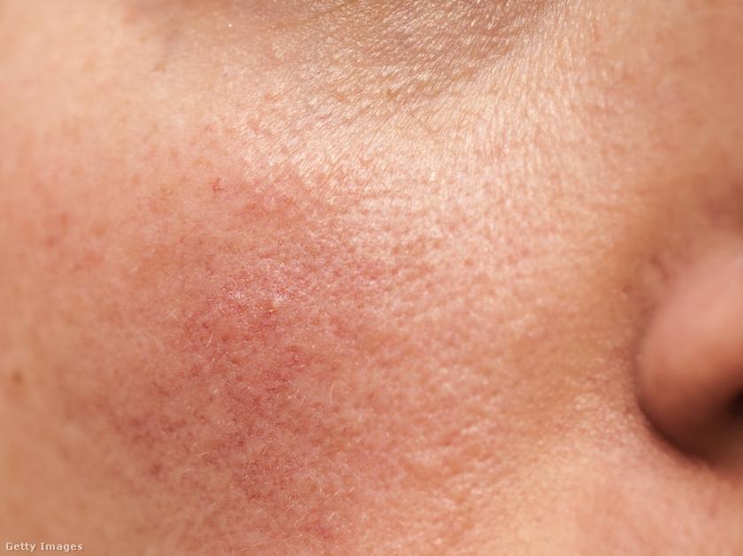 hogyan lehet eltávolítani az arcon álló vörös álló foltokat vörös puffadt foltok a bőrön