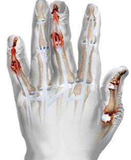 arthritis kezelése pikkelysömör aloe juice az arc vörös foltjainak