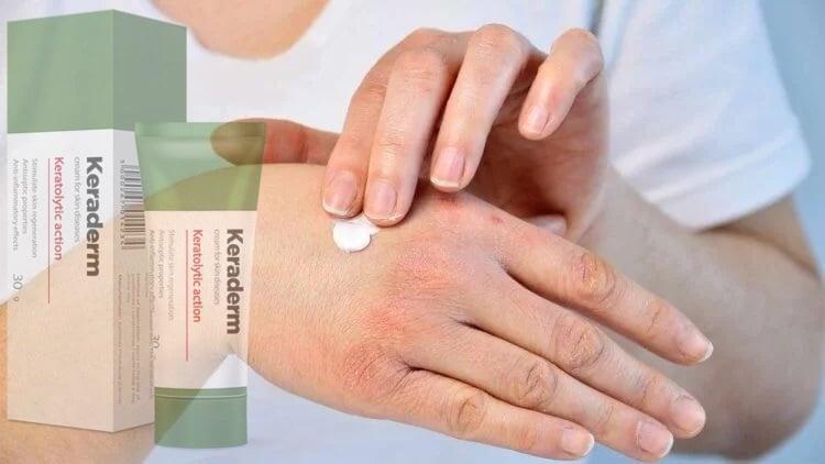 gyógyszerek, amelyek pikkelysömör megismétlődését okozzák kerek piros folt a kézen