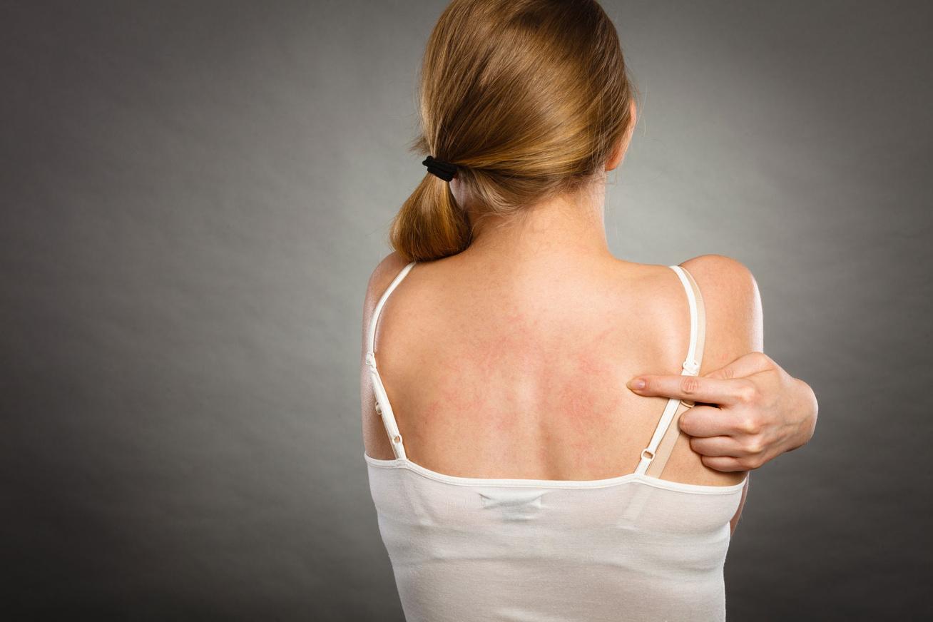 egy nő mellkasán vörös folt viszket pikkelysömör kezelése népi gyógymódokkal a fején
