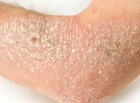 Medifleur Intenzív bőrápoló krém pikkelysömörre 100ml