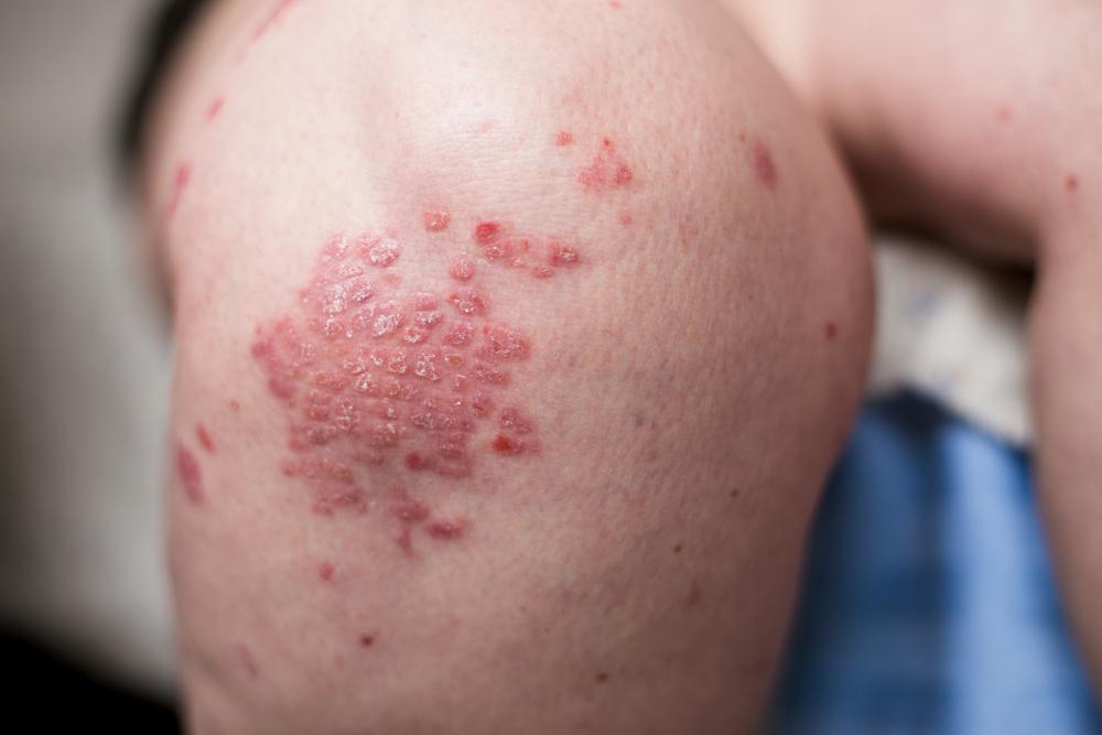 hogy néz ki a pikkelysömörbetegség és hogyan kell kezelni népi gyógymódok a tenyéren és a lábakon található pikkelysömörhöz