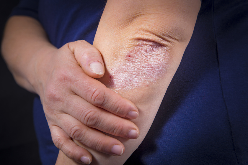 mikrocurrent pikkelysömör kezelése