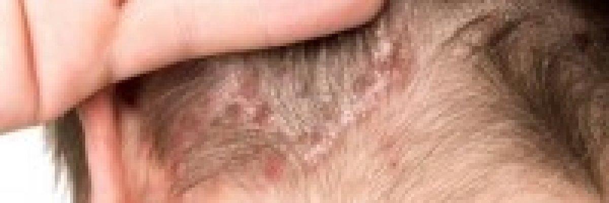 milyen kenőcs a pikkelysömör kezelésére a szemhéjon a lábán vörös folt sima élekkel