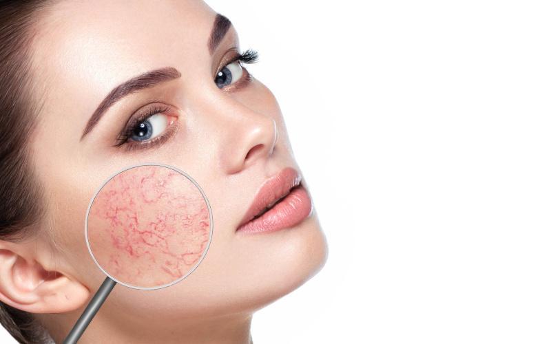 vörös pikkelyes foltok az arcon viszketés kezelés sebek vagy vörös foltok jelennek meg a fejbőr fotóján
