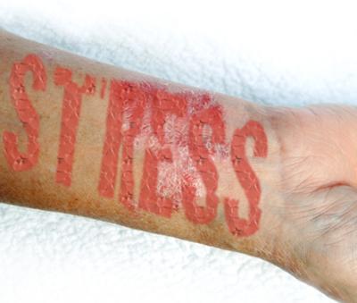 hogyan lehet pikkelysömör gyógyítani milyen injekciók vagy cseppentő fotó piros foltok a lábakon