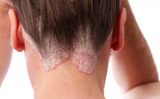 piros viszkető folt a fenéken bőrgyógyászok a pikkelysömör kezeléséről