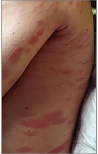 vörös foltok jelentek meg a férfiak lábán a szem alatt vörös foltok kezelése