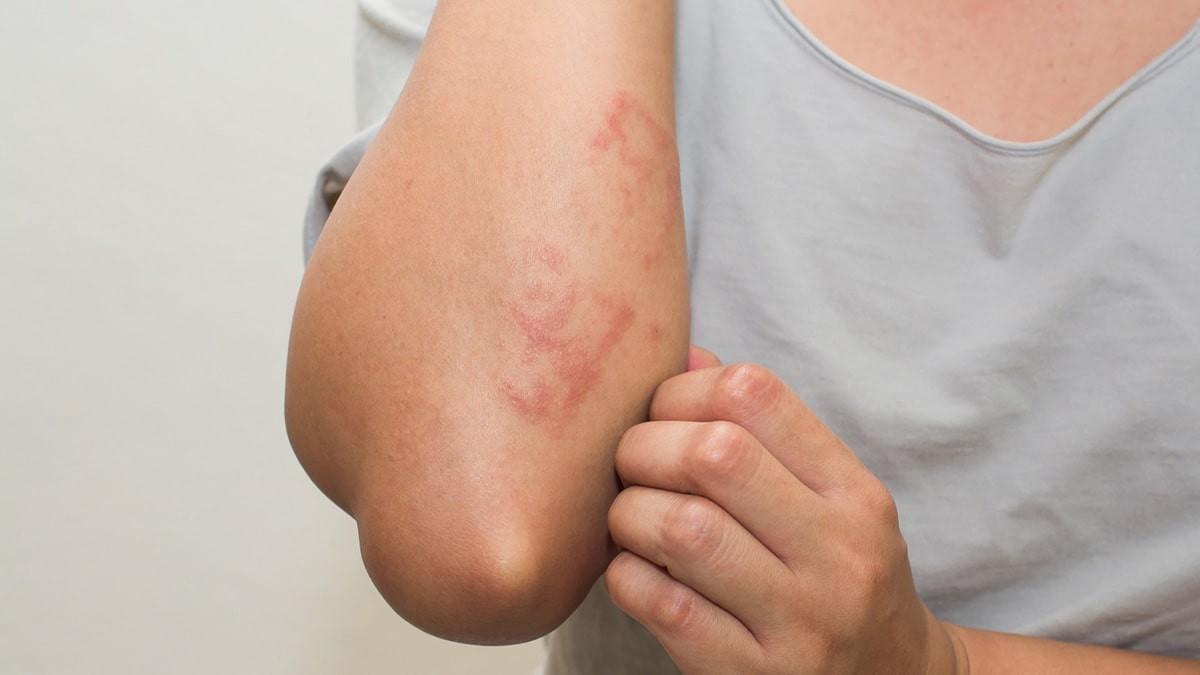 hogyan lehet gyorsan gyógyítani a pikkelysömör az arcon a hasa vörös foltokat öntött ki
