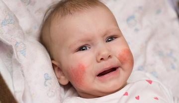 a bőrt vörös foltok borítják, amelyek viszketnek