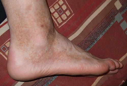 a lábak duzzadtak és vörös foltok jelentek meg mi ez kiütés a lábakon piros foltok fotó