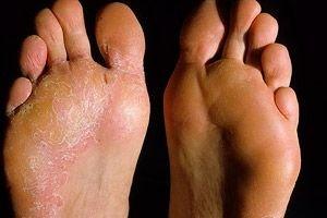 hogyan lehet eltávolítani a bőrpírt pikkelysömörrel