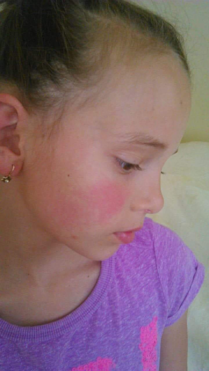 vörös foltok az arcon, a nyakon és a karokon pikkelysömör kezelése cseh üdülőhelyeken