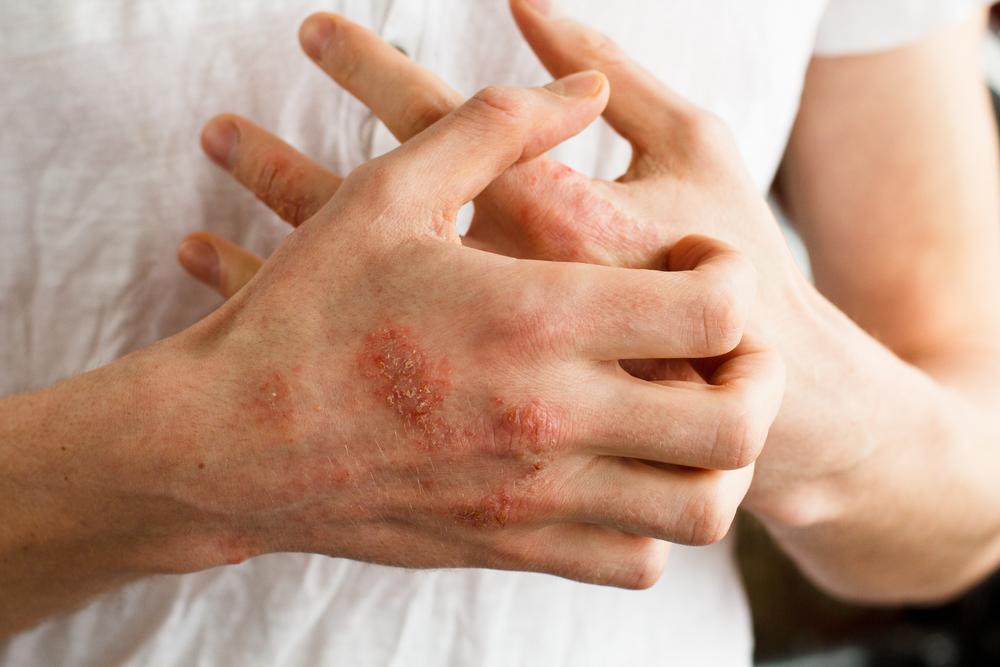 biolit krém pikkelysömörhöz pikkelysömör kátrány kezelése