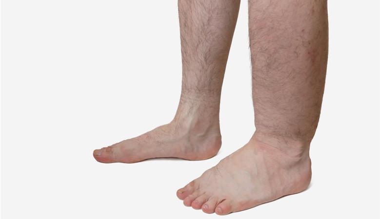 a lábak duzzadtak és vörös foltok jelentek meg mi ez miért vörös foltok a fejbőrön