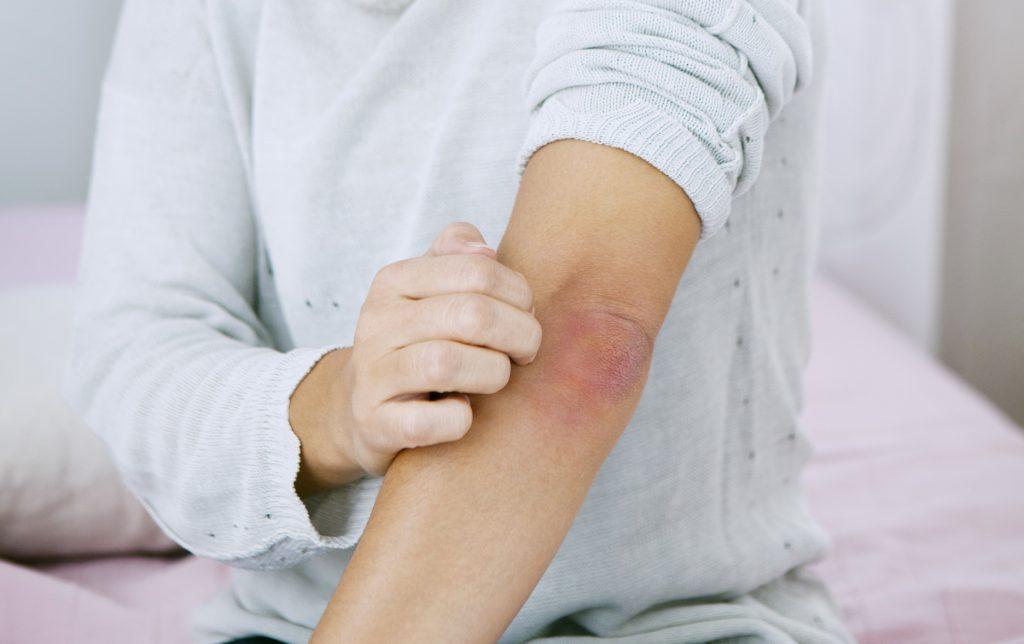 bőrbetegség pikkelysömör hogyan kell kezelni
