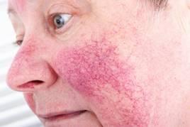 Eucerin®: Atópiás száraz bőr   Atópiás dermatitisz az arcon