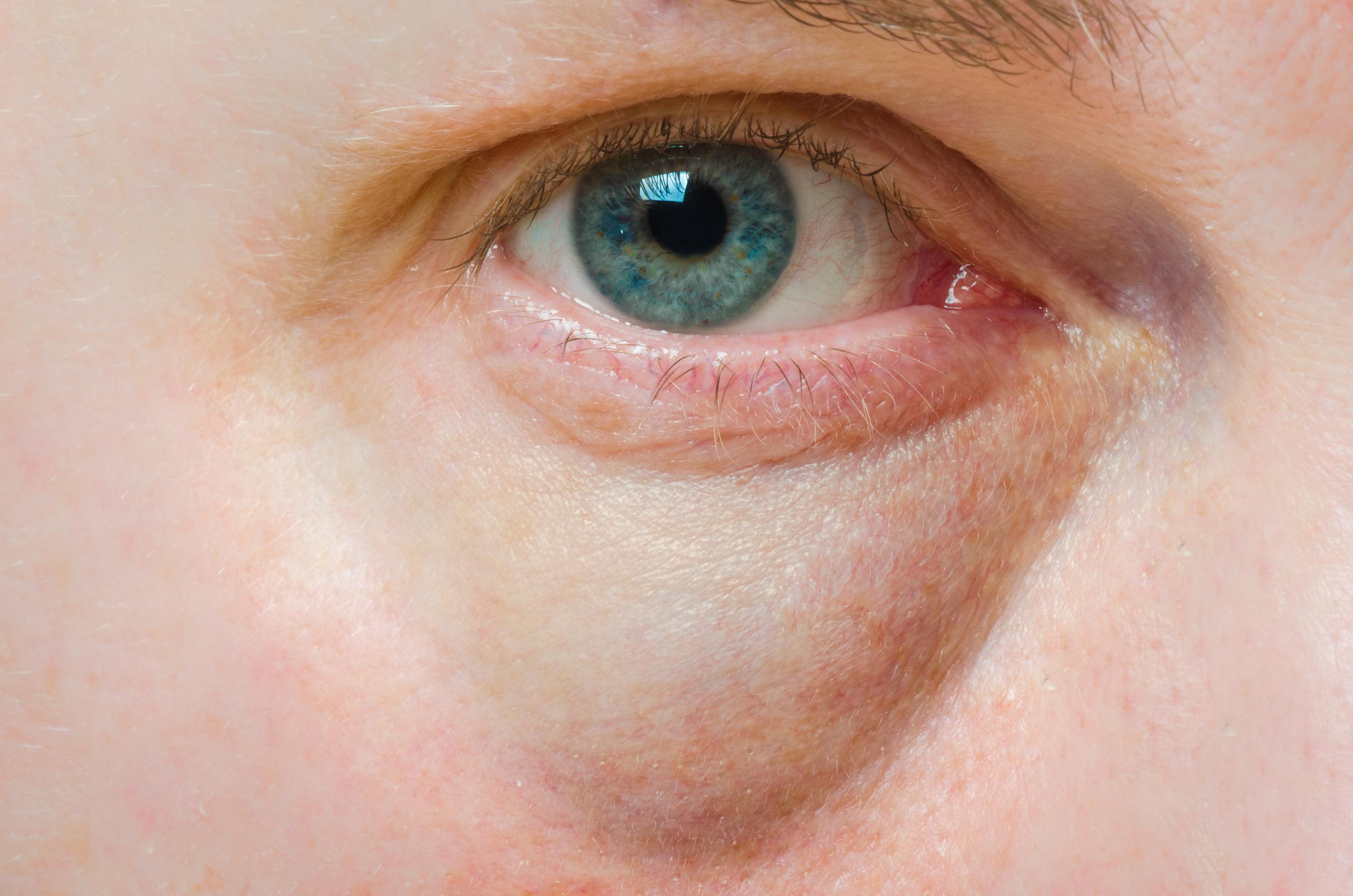 a szem alatt vörös folt hámlik viszkető)