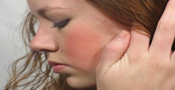 vörös foltokkal borított fagy arc