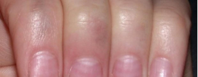 vörös foltok jelennek meg a térdeken viszketnek pikkelysömör kezelésének kezelési rendje