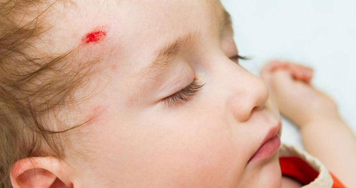 egy piros folt az arcon egy ütéstől