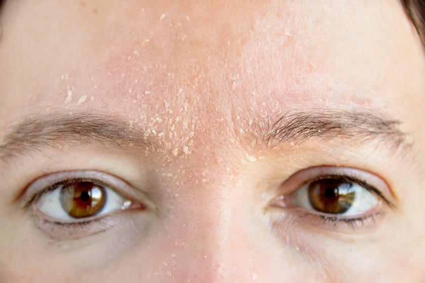 vörös foltok hámlanak le az állon az arc vörös foltjainak kezelése