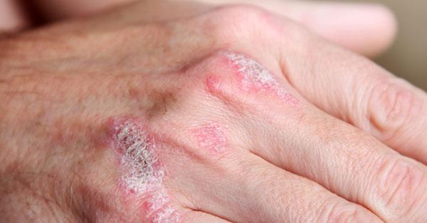 a bőrt vörös foltok borítják, amelyek viszketnek pikkelysömör a fülekben