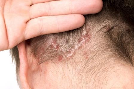 Pikkelysömör a fejbőrön | BBCos Fodrászat, Bionikus hajprotézis