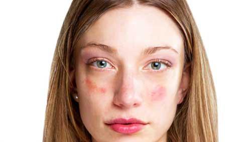 édes vörös foltoktól az arcon la cree krém pikkelysömörre