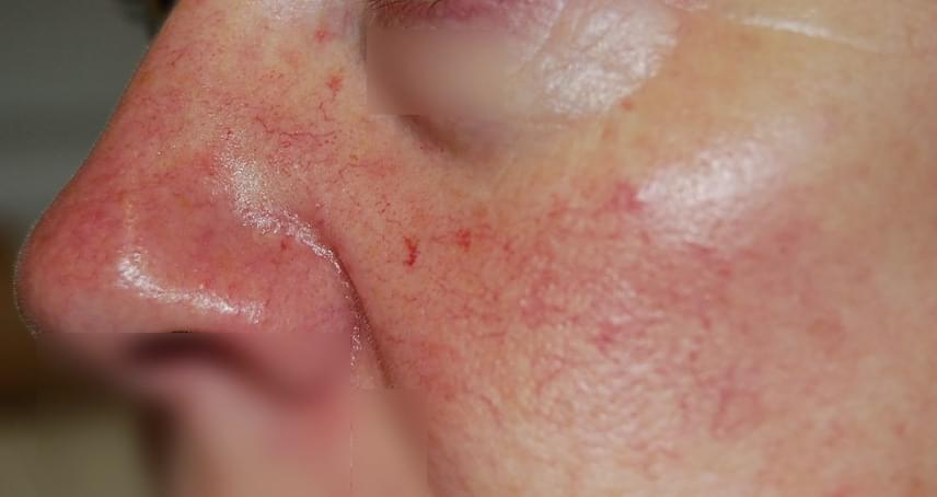 vörös foltok a bőrön félkörben poliszorb a pikkelysmr kezelsben
