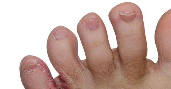 pikkelysömör tünetei és a betegség kezelése