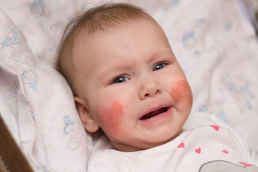 vörös foltok és láz az arcon pszichés gyógyított pikkelysömör