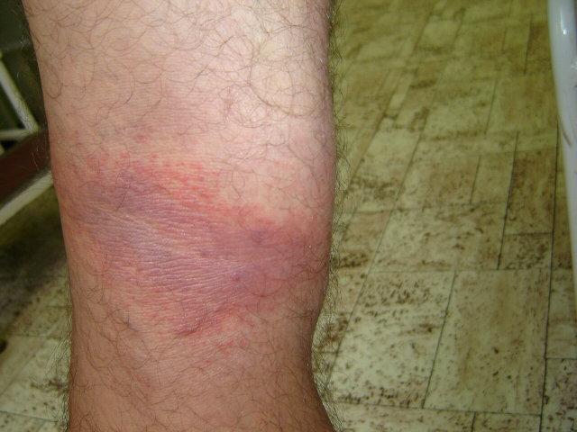 egy vörös folt a hónalj alatt viszket és fáj