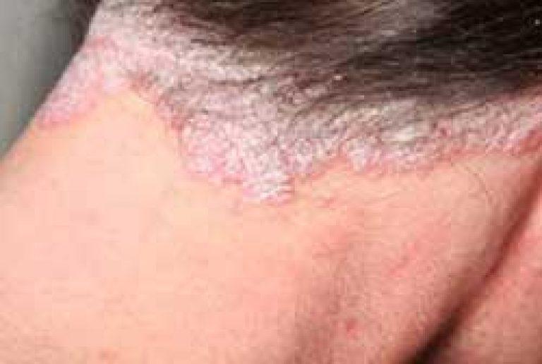 vörös foltok a belső bőr combján