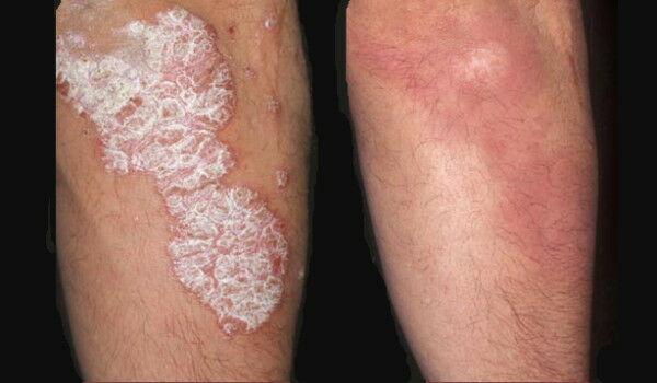vörös folt a lábon rózsaszín zuzmó kezelés